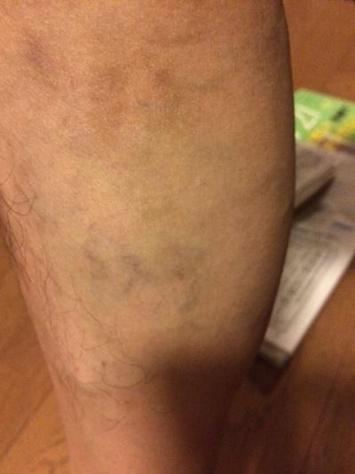炭酸泉は下肢静脈瘤(かしじょうみゃくりゅう)に効くのか?